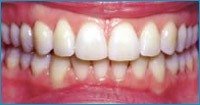 after invisible braces treatment
